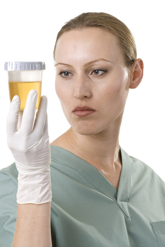 female lab technician holding urine specimen